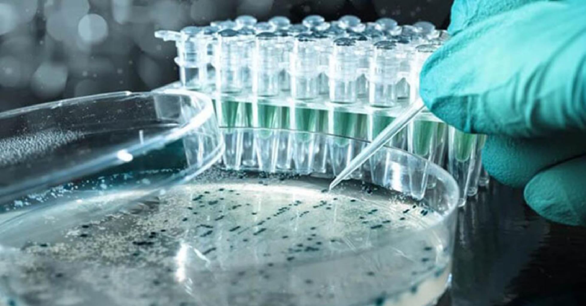Các loại môi trường nuôi cấy vi sinh vật - Phân loại và công dụng
